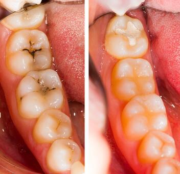 むし歯の治療について